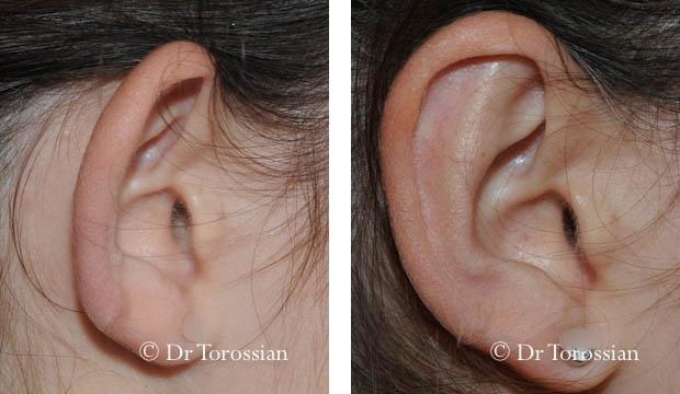 oreilles lyon, oreille lausanne, oreilles décollées, otoplastie, autoplastie, otoplastie prix, otoplastie adulte, oreilles décollées lyon, oreilles décollées lausanne, spécialiste oreilles lyon, résultat otoplastie, earfold, oreilles décollées prix, opération des oreilles décollées, chirurgie des oreilles, otoplastie lyon, otoplastie lausanne, opération oreille décollée, oreilles décollées sans chirurgie, oreilles décollées solution