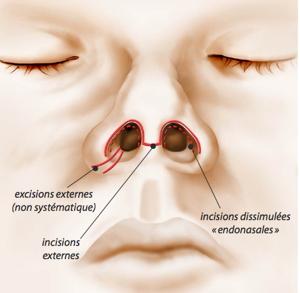 rhinoplastie, rhinoplastie lyon, rhinoplastie lausanne, spécialiste rhinoplastie, meilleur chirurgien du nez, rhinoplastie prix, coût rhinoplastie, rhinoplastie médicale, nez refait, opération du nez, rhinoplastie lyon meilleur chirurgien, chirurgie du nez, chirurgien esthétique du nez, prix rhinoplastie, rhinoplastie clinique du parc, rhinoplastie secondaire, rhinoplastie avant après, résultat rhinoplastie,
