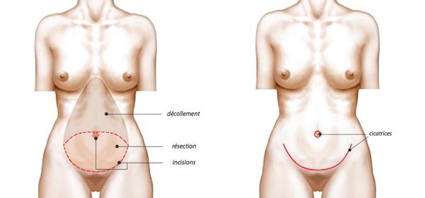 abdominoplastie, chirurgie réparatrice du ventre, chirurgie du ventre, tablier abdominale, cicatrice de césarienne, ventre forcé, ventre grossesse, vergetures ventre, opération esthétique du ventre, chirurgien abdominoplastie lyon, abdominoplastie lausanne, chirurgie esthétique du ventre, chirurgie plastique du ventre, chirurgie réparatrice du ventre, plastie abdominale, abdominaux, meilleur chirurgien du ventre, expert chirurgie esthétique, lifting du ventre, lifting du ventre photos, lifting ventre après grossesse, plastie abdominale, abdominoplastie prise en charge sécurité sociale,