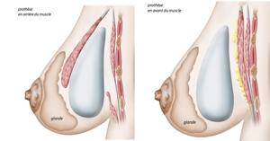 Mammaire, augmentation des seins, augmentation seins, augmentation mammaire, Mammaire lyon, augmentation des seins lyon, augmentation seins lyon, augmentation mammaire lyon, Mammaire lausanne, augmentation des seins lausanne, augmentation seins lausanne, augmentation mammaire lausanne, chirurgie des seins, chirugie des seins, chirurgie seins, chirugie seins, tarif augmentation mammaire lyon, implant mammaire, implants mammaires, prothèses mammaires, prothèses mammaires lyon, augmentation mammaire lyon prix, augmentation mammaire lausanne tarif, chirurgie mammaire, prothèses seins, prothèse mammaire, prothèses anatomiques, tarif augmentation mammaire, seins esthétique, seins Torossian, seins Lyon, seins Lausanne, opération seins, opération mammaire,