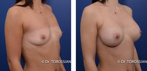 Mammaire, augmentation des seins, augmentation seins, augmentation mammaire, Mammaire lyon, augmentation des seins lyon, augmentation seins lyon, augmentation mammaire lyon, Mammaire lausanne, augmentation des seins lausanne, augmentation seins lausanne, augmentation mammaire lausanne, augmentation des seins genève, chirurgie des seins, chirugie des seins, chirurgie seins, chirugie seins, tarif augmentation mammaire lyon, implants mammaires, prothèses mammaires, prothèses mammaires lyon, augmentation mammaire lyon prix, augmentation mammaire lausanne tarif, chirurgie mammaire, prothèses seins, prothèse mammaire, prothèses anatomiques, tarif augmentation mammaire, seins esthétique, seins Lyon, seins Lausanne, opération seins
