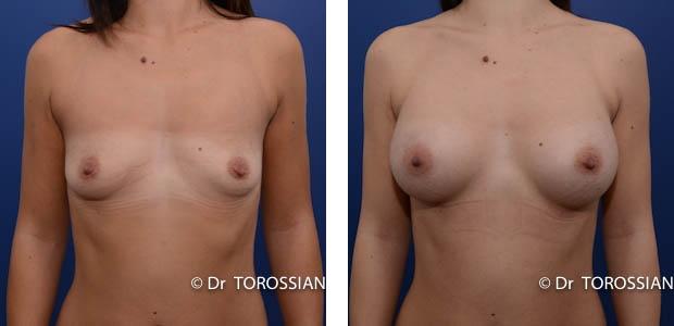 chirurgie esthétique lyon, augmentation des seins, augmentation seins, augmentation mammaire, Mammaire lyon, augmentation des seins lyon, augmentation seins lyon, augmentation mammaire lyon, Mammaire lausanne, augmentation des seins lausanne, augmentation seins lausanne, augmentation mammaire lausanne, augmentation des seins genève, chirurgie des seins, chirugie des seins, chirurgie seins, chirugie seins, tarif augmentation mammaire lyon, implants mammaires, prothèses mammaires, prothèses mammaires lyon, augmentation mammaire lyon prix, augmentation mammaire lausanne tarif, chirurgie mammaire, prothèses seins, prothèse mammaire, prothèses anatomiques, tarif augmentation mammaire, seins esthétique, seins Lyon, seins Lausanne, opération seins