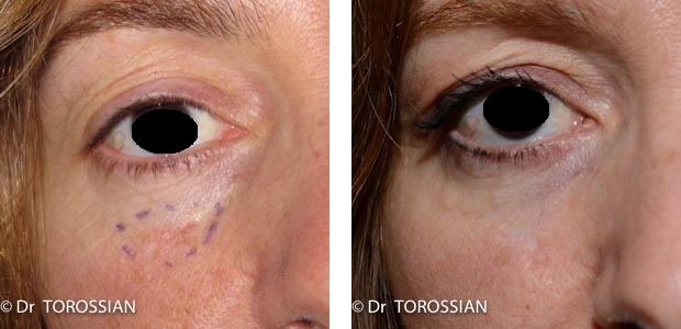 chirurgie réparatrice face, chirurgie reconstructrice face, chirurgie face, chirurgie réparatrice lyon, chirurgie face lausanne, lambeaux de la face, reconstruction paupières, reconstruction oreille, reprise de cicatrice lyon, torossian,