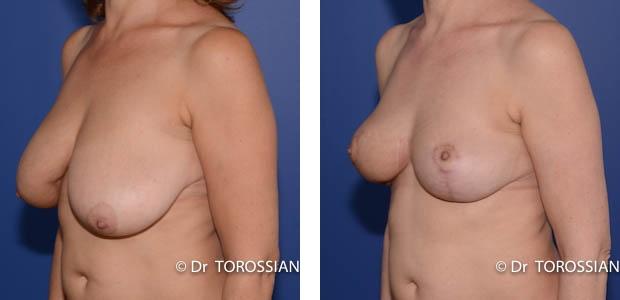 reconstruction mammaire, lipofilling mammaire, lipofilling reconstruction mammaire, prothèse mammaire, plastie mammaire, lipofilling sein, seins asymétriques, seins tubéreux, malformation sein, seins tubéreux
