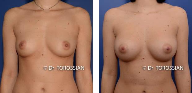 augmentation mammaire lyon, augmentation des seins lyon, augmentation seins lyon, augmentation des seins lausanne, augmentation seins lausanne, augmentation mammaire lausanne, augmentation des seins annecy, chirurgie des seins lyon, chirurgie des seins lausanne, chirurgie des seins valence, chirurgie des seins annecy, chirurgie des seins genève, chirurgie du sein lyon, chirurgie du sein lausanne, chirurgie esthetique mammaire lyon, chirurgie esthetique mammaire lausanne, chirurgie mammaire lyon, chirurgie mammaire lausanne, chirurgie mammaire valence, chirurgie esthétique lyon, chirurgie mammaire chambéry, chirurgie mammaire annecy, mammoplastie lyon, mammoplastie lausanne, prix chirurgie mammaire lyon, prix chirurgie mammaire lausanne, augmentation mamaire lyon, augmentation mamaire lausanne, augmentation mamaire genève, augmentation mammaire lyon, augmentation mammaire lausanne, augmentation mammaire prix lyon, augmentation mammaire prix lausanne, prix augmentation mammaire lyon, prix augmentation mammaire lausanne, tarif augmentation mammaire lyon, tarif augmentation mammaire lausanne, implant mammaire lyon, implant mammaire lausanne, implant mammaire tarif lyon, implant mammaire tarif lausanne, implants mammaires lyon, implants mammaires lausanne, prothese mammaire lyon, prothese mammaire lausanne, prothese mammaire valence, prothese mammaire grenoble, prothese mammaire chambéry,