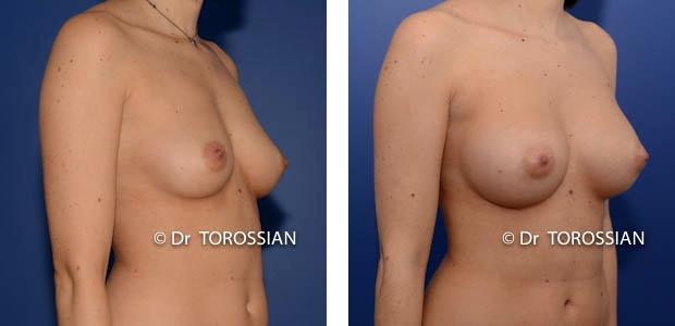 augmentation mammaire lyon, augmentation des seins lyon, augmentation seins lyon, augmentation des seins lausanne, augmentation seins lausanne, augmentation mammaire lausanne, augmentation des seins annecy, chirurgie esthétique lyon, chirurgie des seins lyon, chirurgie des seins lausanne, chirurgie des seins valence, chirurgie des seins annecy, chirurgie des seins genève, chirurgie du sein lyon, chirurgie du sein lausanne, chirurgie esthetique mammaire lyon, chirurgie esthetique mammaire lausanne, chirurgie mammaire lyon, chirurgie mammaire lausanne, chirurgie mammaire valence, chirurgie mammaire chambéry, chirurgie mammaire annecy, mammoplastie lyon, mammoplastie lausanne, prix chirurgie mammaire lyon, prix chirurgie mammaire lausanne, augmentation mamaire lyon, augmentation mamaire lausanne, augmentation mamaire genève, augmentation mammaire lyon, augmentation mammaire lausanne, augmentation mammaire prix lyon, augmentation mammaire prix lausanne, prix augmentation mammaire lyon, prix augmentation mammaire lausanne, tarif augmentation mammaire lyon, tarif augmentation mammaire lausanne, implant mammaire lyon, implant mammaire lausanne, implant mammaire tarif lyon, implant mammaire tarif lausanne, implants mammaires lyon, implants mammaires lausanne, prothese mammaire lyon, prothese mammaire lausanne, prothese mammaire valence, prothese mammaire grenoble, prothese mammaire chambéry,