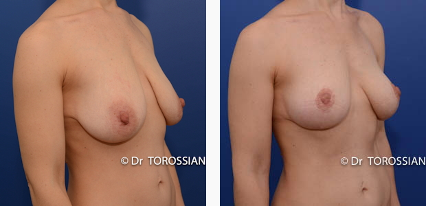 Lifting des seins lyon, lifting des seins lausanne, chirurgie des seins lyon, chirurgie des seins lausanne, chirurgie des seins valence, chirurgie des seins annecy, chirurgie des seins genève, chirurgie du sein lyon, chirurgie du sein lausanne, chirurgie esthetique mammaire lyon, chirurgie esthetique mammaire lausanne, chirurgie mammaire lyon, chirurgie mammaire lausanne, chirurgie mammaire valence, chirurgie mammaire chambéry, chirurgie mammaire annecy, mammoplastie lyon, mammoplastie lausanne, prix chirurgie mammaire lyon, prix chirurgie mammaire lausanne, peie mammaire lyon, pexie mammaire lausanne, augmentation mammaire lyon augmentation mammaire lausanne, tarif lifting des seins lyon, tarif lifting des seins lausanne, lifting mammaire lyon, lifting mammaire lausanne, ptôse mammaire lyon, ptôse mammaire lausanne