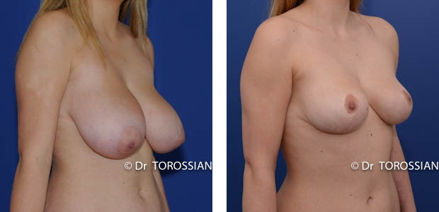 chirurgie des seins lyon, chirurgie des seins lausanne, chirurgie des seins valence, chirurgie des seins annecy, chirurgie des seins genève, chirurgie du sein lyon, chirurgie du sein lausanne, chirurgie esthetique mammaire lyon, chirurgie esthetique mammaire lausanne, chirurgie mammaire lyon, chirurgie mammaire lausanne, chirurgie mammaire valence, chirurgie mammaire chambéry, chirurgie mammaire annecy, mammoplastie lyon, mammoplastie lausanne, prix chirurgie mammaire lyon, prix chirurgie mammaire lausanne, peie mammaire lyon, pexie mammaire lausanne, augmentation mammaire lyon augmentation mammaire lausanne, tarif lifting des seins lyon, tarif lifting des seins lausanne, lifting mammaire lyon, lifting mammaire lausanne, ptôse mammaire lyon, ptôse mammaire lausanne, hypertrophie mammaire lyon, hypertrophie mammaire lausanne, mammoplastie de réduction lyon, seins lourds lyon, asymétrie mammaire lyon, asymétrie mammaire lausanne, chirurgie esthétique lyon