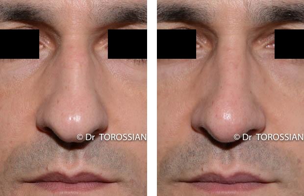 profiloplastie lyon, profiloplastie lausanne, chirurgie du nez lyon, chirurgie du nez lausanne , chirurgien rhinoplastie lyon, chirurgien rhinoplastie lausanne, meilleur chirurgien rhinoplastie lyon, meilleur chirurgien rhinoplastie lausanne, prix rhinoplastie lyon, prix rhinoplastie lausanne, rhinoplastie lyon, rhinoplastie lausanne, rhinoplastie prix lyon, rhinoplastie prix lausanne, spécialiste rhinoplastie lyon, spécialiste rhinoplastie lausanne, genioplastie lyon, genioplastie lausanne, chirurgie du visage lyon, chirurgie du visage lausanne, chirurgie esthetique visage lyon, chirurgie esthetique visage lausanne, chirurgie visage lyon, chirurgie visage lausanne, spécialiste visage lyon, bon chirurgien esthetique lyon, bon chirurgien esthetique lausanne, cabinet esthetique lyon, cabinet esthetique lausanne, chirurgie plastique lyon, chirurgie plastique lausanne, chirurgien esthetique lyon, chirurgien esthetique lausanne, chirurgien plasticien lyon, chirurgien plasticien lausanne, chirurgien plastique lyon, chirurgien plastique lausanne, clinique chirurgie esthétique lyon, clinique chirurgie esthétique l lausanne, meilleur chirurgien esthetique lyon, meilleur chirurgien esthetique lausanne, tarif chirurgie esthetique lyon, tarif chirurgie esthetique lausanne,