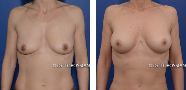 augmentation mammaire lyon, augmentation des seins lyon, augmentation seins lyon, augmentation des seins lausanne, augmentation seins lausanne, augmentation mammaire lausanne, augmentation des seins annecy, chirurgie des seins lyon, chirurgie des seins lausanne, chirurgie des seins valence, chirurgie des seins annecy, chirurgie des seins genève, chirurgie du sein lyon, chirurgie du sein lausanne, chirurgie esthetique mammaire lyon, chirurgie esthetique mammaire lausanne, chirurgie mammaire lyon, chirurgie mammaire lausanne, chirurgie mammaire valence, chirurgie mammaire chambéry, chirurgie mammaire annecy, mammoplastie lyon, mammoplastie lausanne, prix chirurgie mammaire lyon, prix chirurgie mammaire lausanne, augmentation mamaire lyon, augmentation mamaire lausanne, augmentation mamaire genève, augmentation mammaire lyon, augmentation mammaire lausanne, augmentation mammaire prix lyon, augmentation mammaire prix lausanne, prix augmentation mammaire lyon, prix augmentation mammaire lausanne, tarif augmentation mammaire lyon, tarif augmentation mammaire lausanne, implant mammaire lyon, implant mammaire lausanne, implant mammaire tarif lyon, implant mammaire tarif lausanne, implants mammaires lyon, implants mammaires lausanne, prothese mammaire lyon, prothese mammaire lausanne, prothese mammaire valence, prothese mammaire grenoble, prothese mammaire chambéry, bon chirurgien esthetique lyon, bon chirurgien esthetique lausanne, cabinet esthetique lyon, cabinet esthetique lausanne, chirurgie plastique lyon, chirurgie plastique lausanne, chirurgien esthetique lyon, chirurgien esthetique lausanne, chirurgien plasticien lyon, chirurgien plasticien lausanne, chirurgien plastique lyon, chirurgien plastique lausanne, clinique chirurgie esthétique lyon, clinique chirurgie esthétique l lausanne, meilleur chirurgien esthetique lyon, meilleur chirurgien esthetique lausanne, tarif chirurgie esthetique lyon, tarif chirurgie esthetique lausanne,