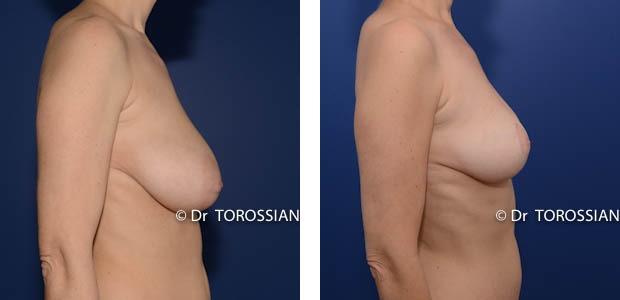 sein lyon, sein lausanne, chirurgie esthétique lyon, chirurgien esthétique lyon, Lifting des seins lyon, lifting des seins lausanne, chirurgie des seins lyon, chirurgie des seins lausanne, chirurgie des seins valence, chirurgie des seins annecy, chirurgie des seins genève, chirurgie du sein lyon, chirurgie du sein lausanne, chirurgie esthetique mammaire lyon, chirurgie esthetique mammaire lausanne, chirurgie mammaire lyon, chirurgie mammaire lausanne, chirurgie mammaire valence, chirurgie mammaire chambéry, chirurgie mammaire annecy, mammoplastie lyon, mammoplastie lausanne, prix chirurgie mammaire lyon, prix chirurgie mammaire lausanne, peie mammaire lyon, pexie mammaire lausanne, augmentation mammaire lyon, augmentation mammaire lausanne, tarif lifting des seins lyon, tarif lifting des seins lausanne, lifting mammaire lyon, lifting mammaire lausanne, ptôse mammaire lyon, ptôse mammaire lausanne