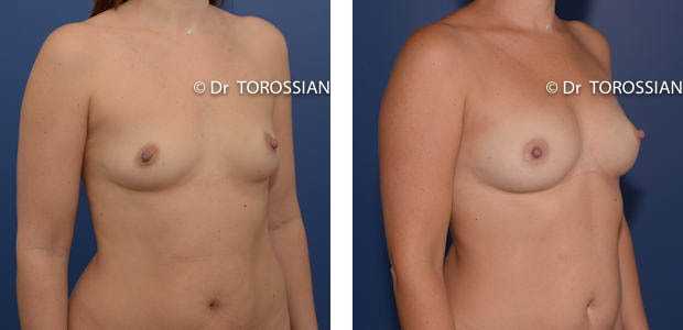 lipofilling mammaire lyon, lipoffiliing lyon, lipofilling lausanne, chirurgie esthétique lyon, chirurgie esthétique lausanne, sein lyon, sein lausanne, chirurgie esthétique lyon, chirurgien esthétique lyon, Lifting des seins lyon, lifting des seins lausanne, chirurgie des seins lyon, chirurgie des seins lausanne, chirurgie des seins valence, chirurgie des seins annecy, chirurgie des seins genève, chirurgie du sein lyon, chirurgie du sein lausanne, chirurgie esthetique mammaire lyon, chirurgie esthetique mammaire lausanne, chirurgie mammaire lyon, chirurgie mammaire lausanne, chirurgie mammaire valence, chirurgie mammaire chambéry, chirurgie mammaire annecy, mammoplastie lyon, mammoplastie lausanne, prix chirurgie mammaire lyon, prix chirurgie mammaire lausanne, peie mammaire lyon, pexie mammaire lausanne, augmentation mammaire lyon, augmentation mammaire lausanne, tarif lifting des seins lyon, tarif lifting des seins lausanne, lifting mammaire lyon, lifting mammaire lausanne, ptôse mammaire lyon, ptôse mammaire lausanne