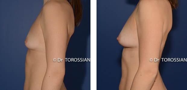 lipofilling mammaire lyon, lipofilling mammaire lausanne, lipofilling lyon, mamelons ombiliqués lyon, lipofilling lausanne, chirurgie esthétique lyon, chirurgie esthétique lausanne, sein lyon, sein lausanne, chirurgie esthétique lyon, chirurgien esthétique lyon, Lifting des seins lyon, lifting des seins lausanne, chirurgie des seins lyon, chirurgie des seins lausanne, chirurgie des seins valence, chirurgie des seins annecy, chirurgie des seins genève, chirurgie du sein lyon, chirurgie du sein lausanne, chirurgie esthetique mammaire lyon, chirurgie esthetique mammaire lausanne, chirurgie mammaire lyon, chirurgie mammaire lausanne, chirurgie mammaire valence, chirurgie mammaire chambéry, chirurgie mammaire annecy, mammoplastie lyon, mammoplastie lausanne, prix chirurgie mammaire lyon, prix chirurgie mammaire lausanne, pexie mammaire lyon, pexie mammaire lausanne, augmentation mammaire lyon, augmentation mammaire lausanne, tarif lifting des seins lyon, tarif lifting des seins lausanne, lifting mammaire lyon, lifting mammaire lausanne, ptôse mammaire lyon, ptôse mammaire lausanne
