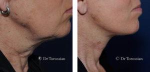 lifting du cou avant après Dr Torossian